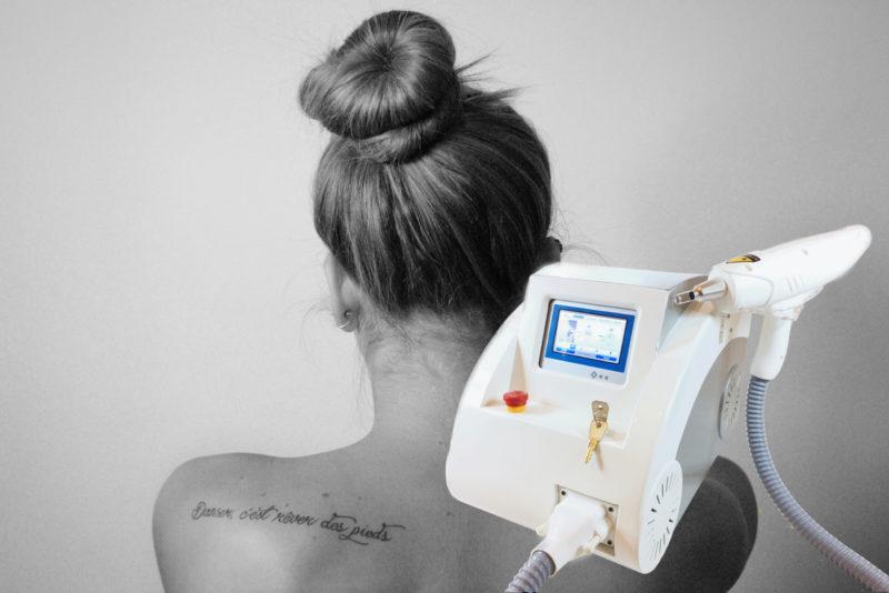 instytut Zdrowia i urody claria chorzow lubliniec laserowe usuwanie tatuazu